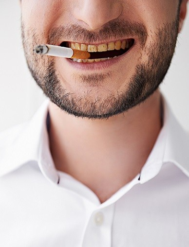 Tobacco Does More Than Just Yellow Your Teeth Le Downs