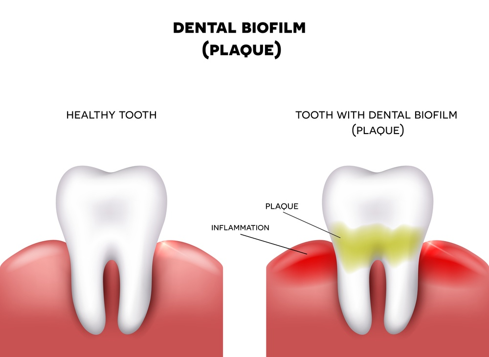 Animated Image of Dental plaque